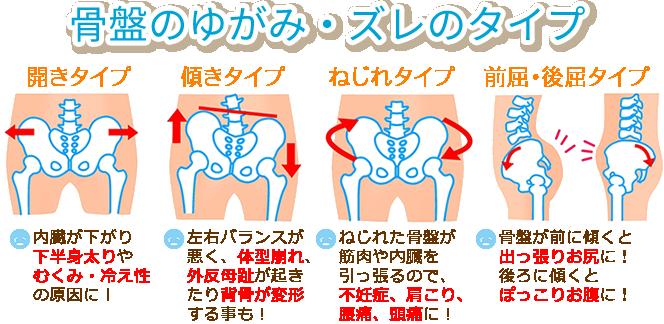 産後の骨盤のゆがみ、ズレのタイプ